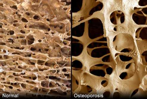 Osteoporosis effect on bone density